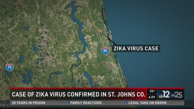 Case of Zika virus confirmed in St. Johns Co.