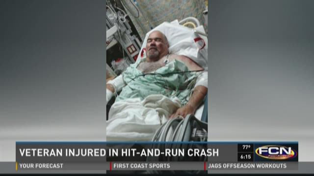 Jose was rushed to the hospital with a shattered knee,